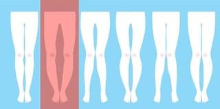 orthopedic-surgeon-bowlegged-graphic.jpg