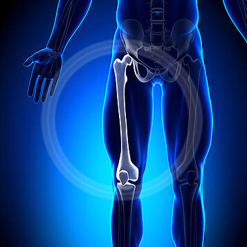 height-lengthening-surgery-femur-adjustments