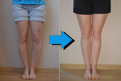 bowleg-leg-before-after.jpg