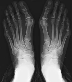 limb-lengthening-surgery.jpg