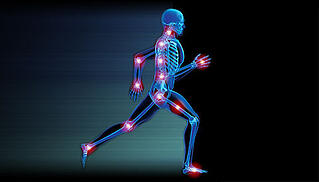 runner-orthopedic-joints-pain-skeleton.jpg