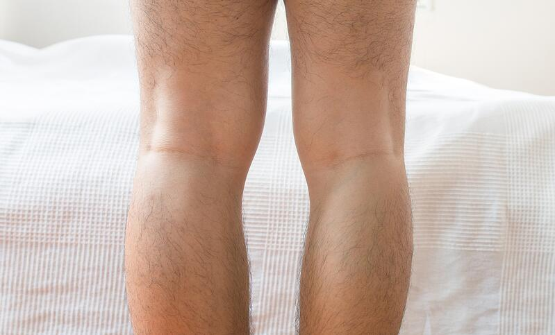bow legs genu varus bone deformities leg lenthening limb height