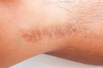 leg lengthening surgery scars (1)
