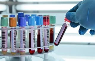 plasma rich platelet therapy centrifuge blood type.jpg