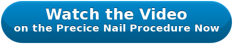 Watch the Video on the Precice Nail Procedure Now