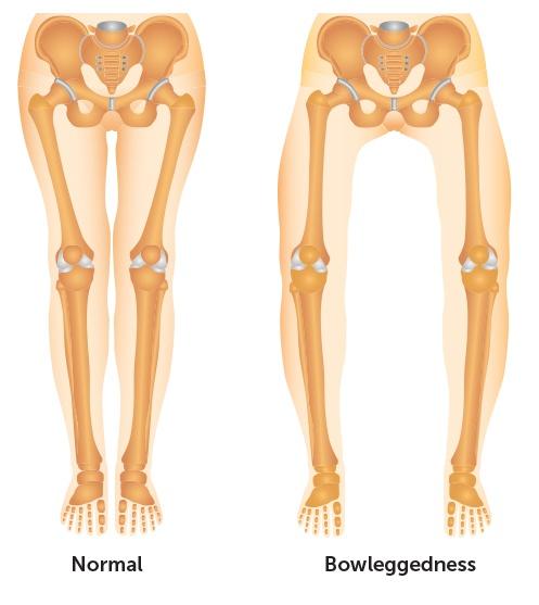 bowleg-normal-legs.jpg