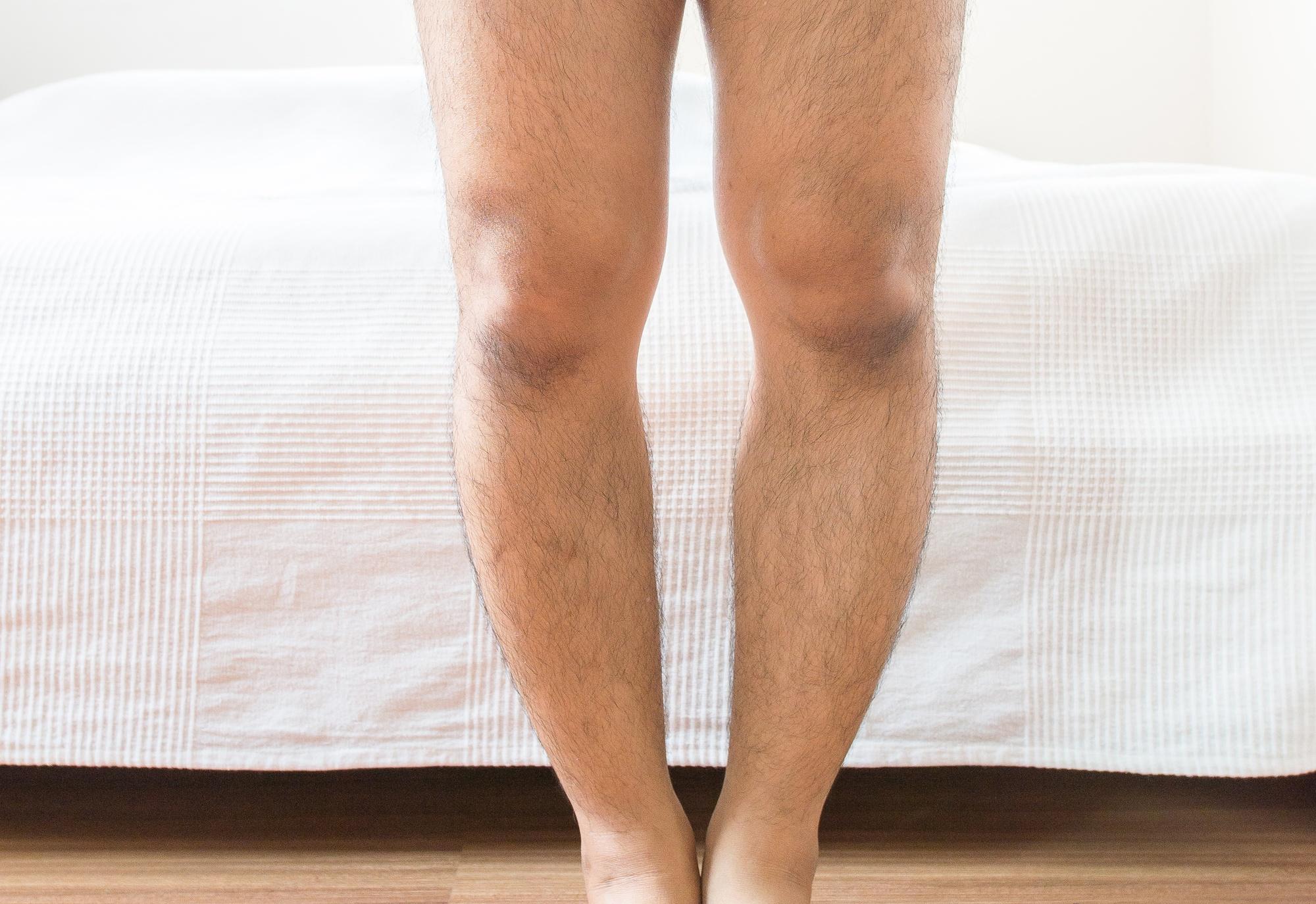 bow legs genu varus height lengthening orthopedic